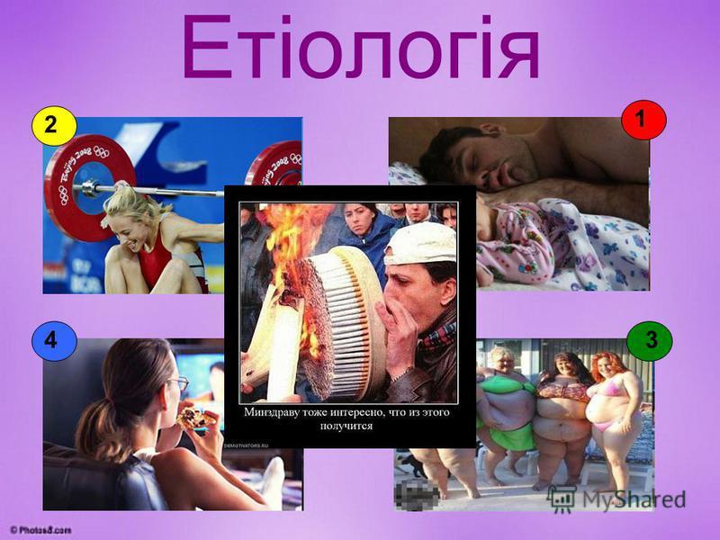 Етіологія 2 3 1 4