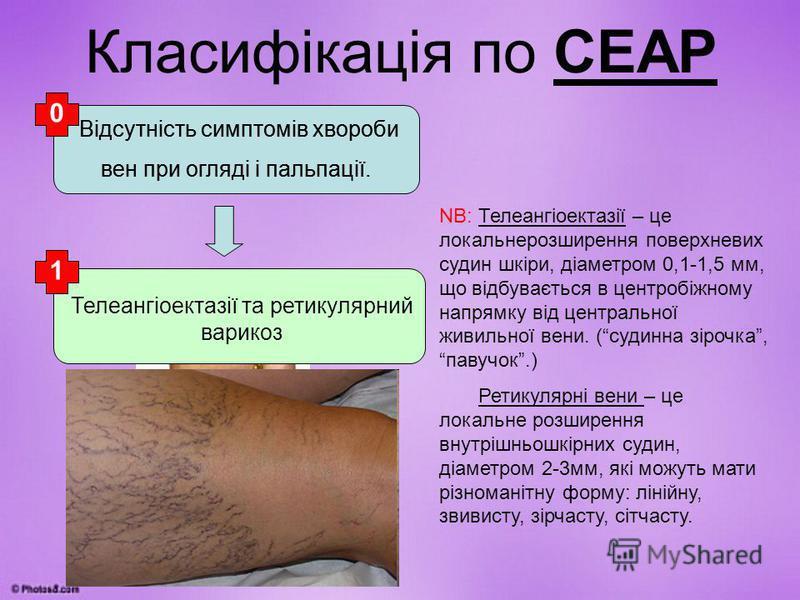 Класифікація по СЕАР Відсутність симптомів хвороби вен при огляді і пальпації. Телеангіоектазії та ретикулярний варикоз NB: Телеангіоектазії – це локальнерозширення поверхневих судин шкіри, діаметром 0,1-1,5 мм, що відбувається в центробіжному напрям