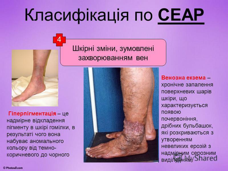 Класифікація по СЕАР Шкірні зміни, зумовлені захворюванням вен Гіперпігментація – це надмірне відкладення пігменту в шкірі гомілки, в результаті чого вона набуває аномального кольору від темно- коричневого до чорного Ліподерматосклероз – грубе ущільн
