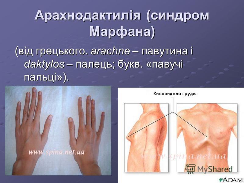 Арахнодактилія (синдром Марфана) (від грецького. arachne – павутина і daktylos – палець; букв. «павучі пальці»).