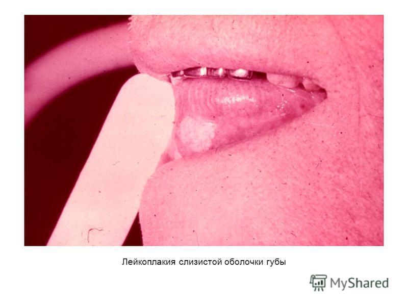Лейкоплакия слизистой оболочки губы