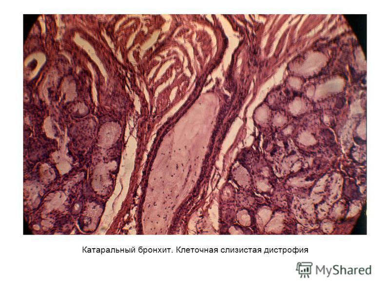 Катаральный бронхит. Клеточная слизистая дистрофия