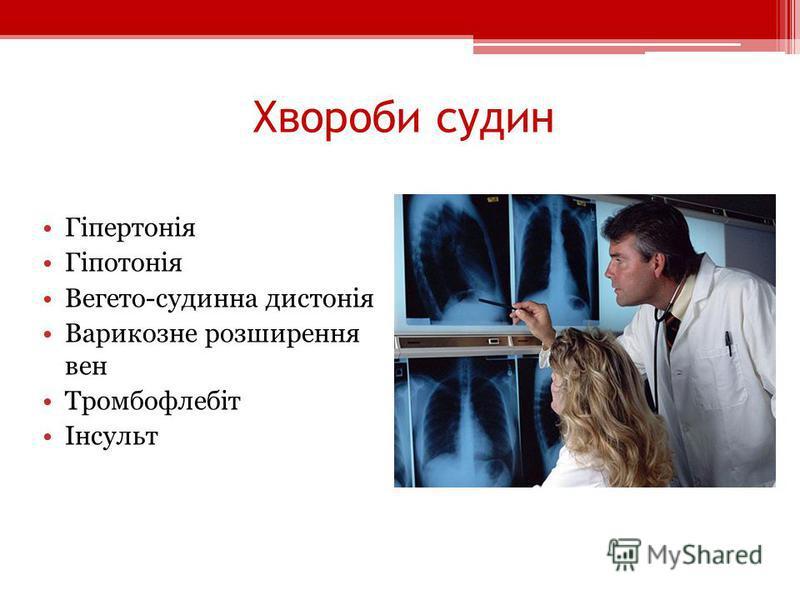 Хвороби судин Гіпертонія Гіпотонія Вегето-судинна дистонія Варикозне розширення вен Тромбофлебіт Інсульт
