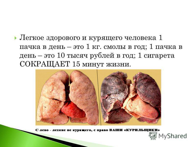 Легкое здорового и курящего человека 1 пачка в день – это 1 кг. смолы в год; 1 пачка в день – это 10 тысяч рублей в год; 1 сигарета СОКРАЩАЕТ 15 минут жизни.