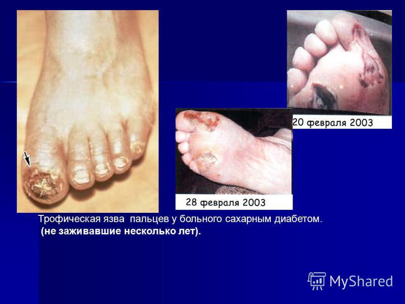 Трофическая язва пальцев у больного сахарным диабетом. (не заживавшие несколько лет).