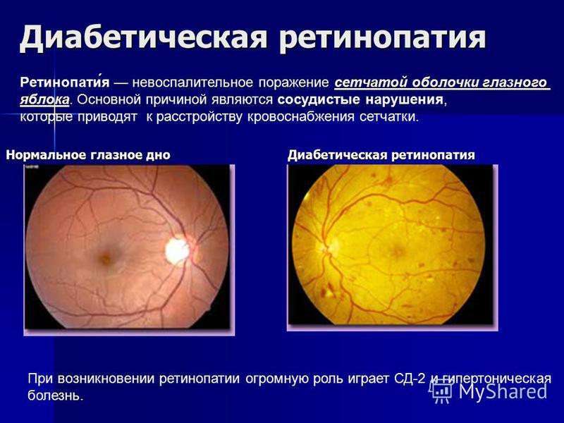 Диабетыческая ретынопатыя Нормальное глазное дно Диабетыческая ретынопатыя Ретынопаты́я невоспалительное поражение сетчатой оболочки глазного сетчатой оболочки глазного яблока. Основной причиной являются сосудистые нарушения, которые приводят к расст