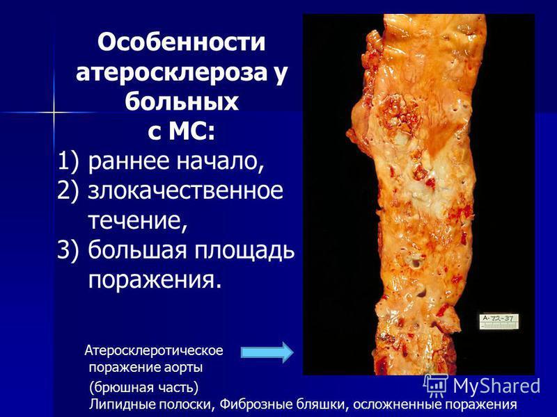 Атеросклеротыческое поражение аорты (брюшная часть) Липидные полоски, Фиброзные бляшки, осложненные поражения Особенносты атеросклероза у больных с МС: 1)раннее начало, 2)злокачественное течение, 3)большая площадь поражения.