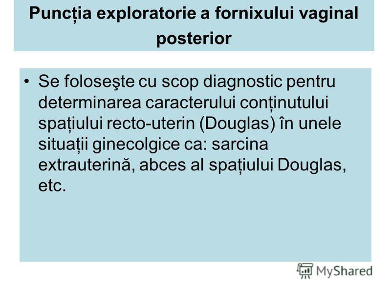 Puncţia exploratorie a fornixului vaginal posterior Se foloseşte cu scop diagnostic pentru determinarea caracterului conţinutului spaţiului recto-uterin (Douglas) în unele situaţii ginecolgice ca: sarcina extrauterină, abces al spaţiului Douglas, etc