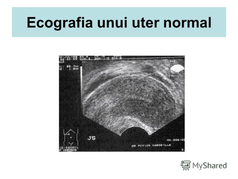 Ecografia unui uter normal