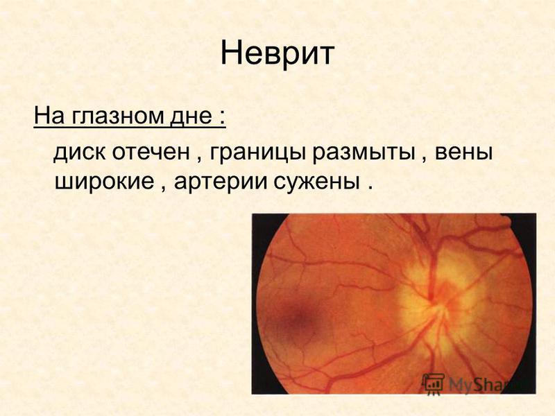 Неврит На глазном дне : диск отечен, границы размыты, вены широкие, артерии сужены.