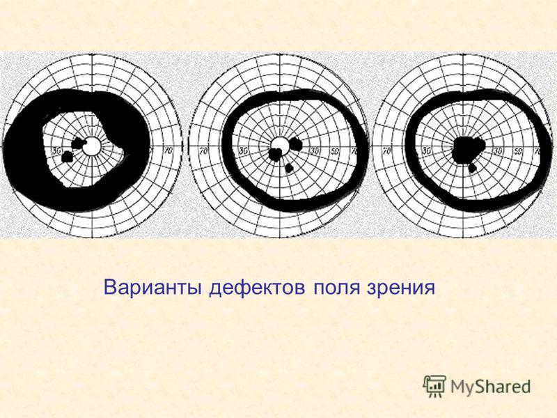 Варианты дефектов поля зрения
