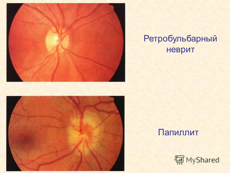Ретробульбарный неврит Папиллит
