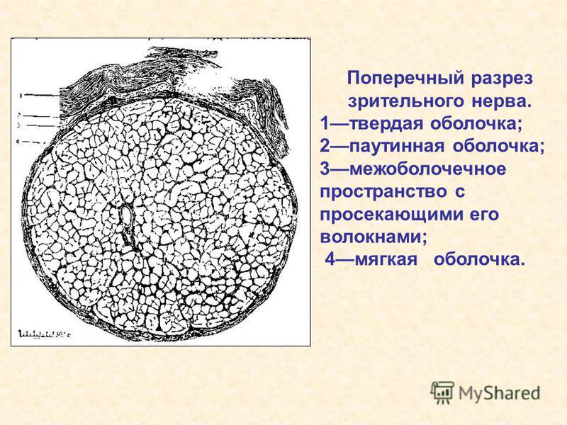 Поперечный разрез зрительного нерва. 1 твердая оболочка; 2 паутинная оболочка; 3 межоболочечное пространство с просекающими его волокнами; 4 мягкая оболочка.