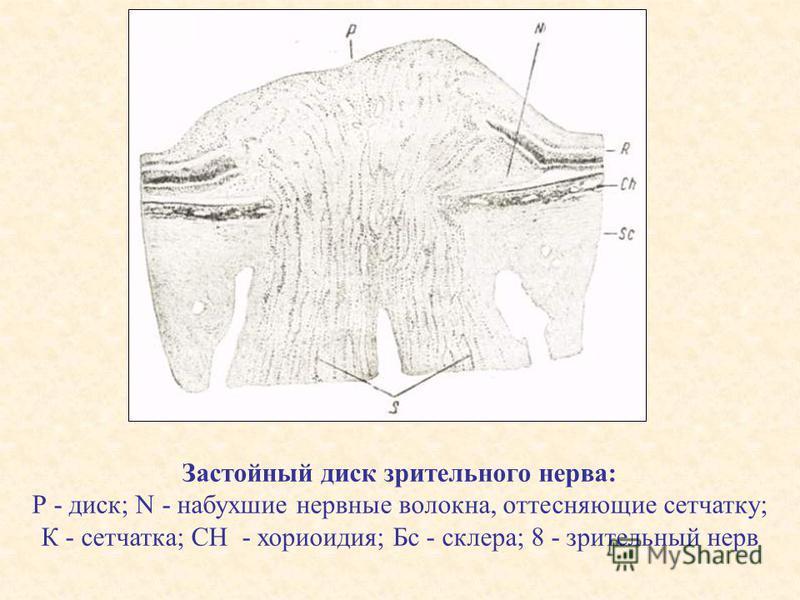 Застойный диск зрительного нерва: Р - диск; N - набухшие нервные волокна, оттесняющие сетчатку; К - сетчатка; СН - хориоидея; Бс - склера; 8 - зрительный нерв