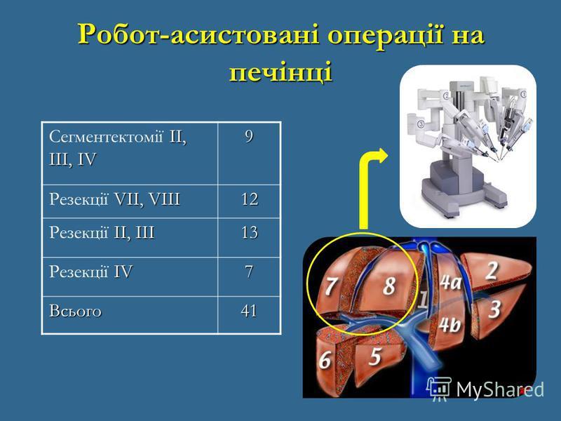 Робот-асистовані операції на печінці II, III, IV Сегментектомії II, III, IV9 VII, VIII Резекції VII, VIII12 II, III Резекції II, III13 IV Резекції IV7 Всього41