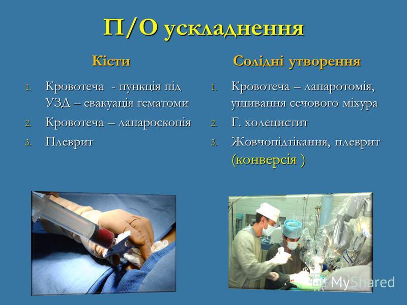 П/О ускладнення Кісти 1. Кровотеча - пункція під УЗД – евакуація гематоми 2. Кровотеча – лапароскопія 3. Плеврит Солідні утворення 1. Кровотеча – лапаротомія, ушивання сечового міхура 2. Г. холецистит 3. Жовчопідтікання, плеврит (конверсія )