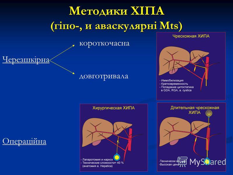 Методики ХІПА (гіпо-, и аваскулярні Мts) короткочасна Черезшкірна довготривала Операційна