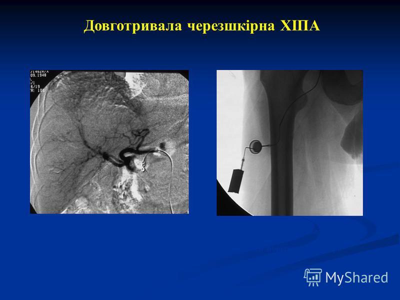 Довготривала черезшкірна ХІПА Катетер в печеночной артерии, ГДА окклюзирована спиралями Порт расположен подкожно на передней поверхности бедра