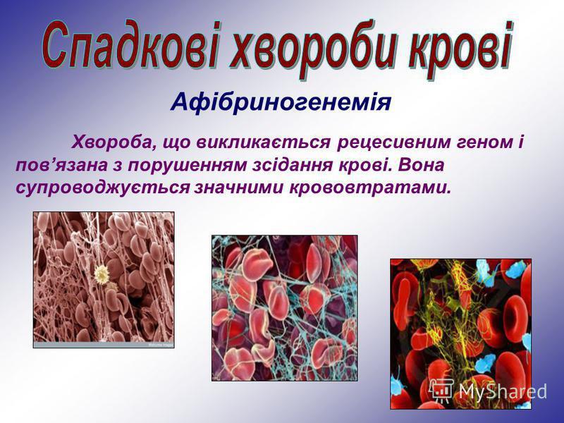 Хвороба, що викликається рецесивним геном і повязана з порушенням зсідання крові. Вона супроводжується значними крововтратами. Афібриногенемія