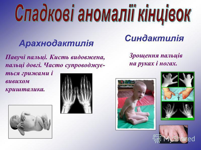 Синдактилія Арахнодактилія Павучі пальці. Кисть видовжена, пальці довгі. Часто супроводжує- ться грижами і вивихом кришталика. Зрощення пальців на руках і ногах.
