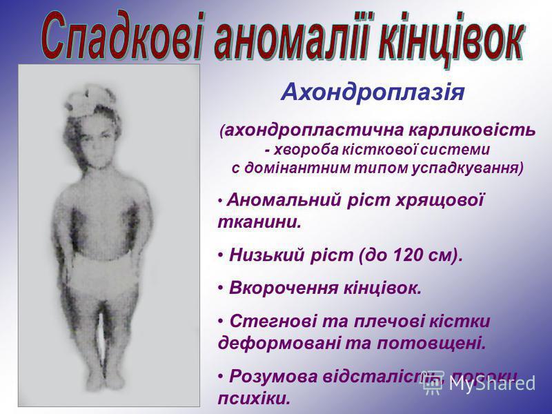 Ахондроплазія ( ахондропластична карликовість - хвороба кісткової системи с домінантним типом успадкування) Аномальний ріст хрящової тканини. Низький ріст (до 120 см). Вкорочення кінцівок. Стегнові та плечові кістки деформовані та потовщені. Розумова
