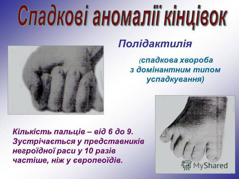 Полідактилія ( спадкова хвороба з домінантним типом успадкування) Кількість пальців – від 6 до 9. Зустрічається у представників негроїдної раси у 10 разів частіше, ніж у європеоїдів.