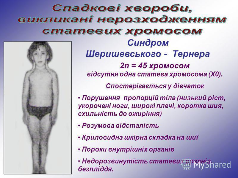 Синдром Шеришевського - Тернера 2n = 45 хромосом відсутня одна статева хромосома (Х0). Спостерігається у дівчаток Порушення пропорцій тіла (низький ріст, укорочені ноги, широкі плечі, коротка шия, схильність до ожиріння) Розумова відсталість Криловид