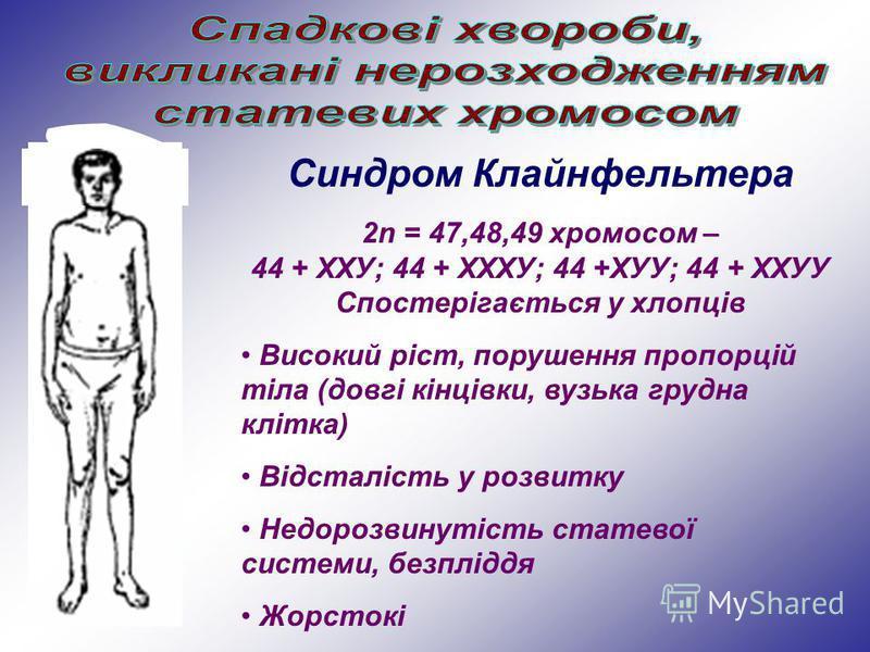 Синдром Клайнфельтера 2n = 47,48,49 хромосом – 44 + ХХУ; 44 + ХХХУ; 44 +ХУУ; 44 + ХХУУ Спостерігається у хлопців Високий ріст, порушення пропорцій тіла (довгі кінцівки, вузька грудна клітка) Відсталість у розвитку Недорозвинутість статевої системи, б