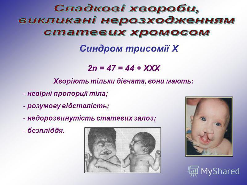 Синдром трисомії Х 2n = 47 = 44 + ХХХ Хворіють тільки дівчата, вони мають: - невірні пропорції тіла; - розумову відсталість; - недорозвинутість статевих залоз; - безпліддя.