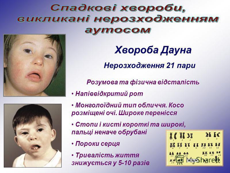Хвороба Дауна Нерозходження 21 пари Розумова та фізична відсталість Напіввідкритий рот Монголоїдний тип обличчя. Косо розміщені очі. Широке перенісся Стопи і кисті короткі та широкі, пальці неначе обрубані Пороки серця Тривалість життя знижується у 5