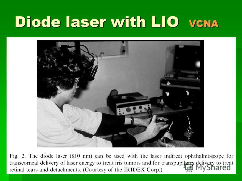 Diode laser with LIO VCNA