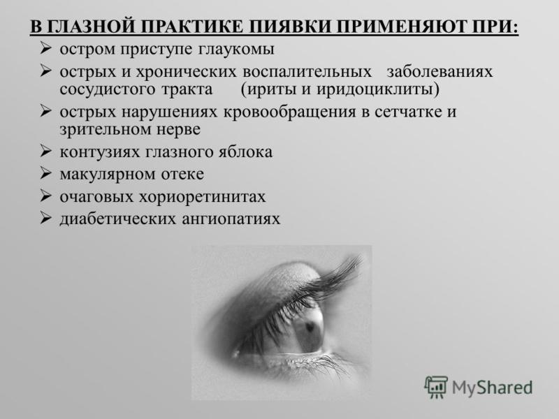 В ГЛАЗНОЙ ПРАКТИКЕ ПИЯВКИ ПРИМЕНЯЮТ ПРИ: остром приступе глаукомы острых и хронических воспалительных заболеваниях сосудистого тракта (ириты и иридоциклиты) острых нарушениях кровообращения в сетчатке и зрительном нерве контузиях глазного яблока маку