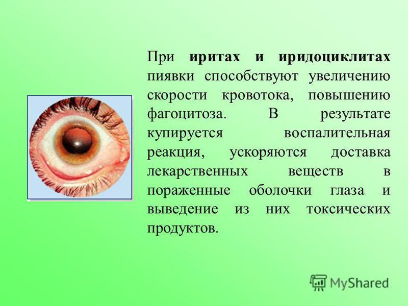 При иритах и иридоциклитах пиявки способствуют увеличению скорости кровотока, повышению фагоцитоза. В результате купируется воспалительная реакция, ускоряются доставка лекарственных веществ в пораженные оболочки глаза и выведение из них токсических п