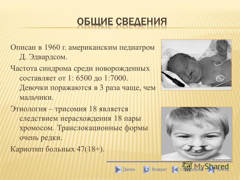 Описан в 1960 г. американским педиатром Д. Эдвардсом. Частота синдрома среди новорожденных составляет от 1: 6500 до 1:7000. Девочки поражаются в 3 раза чаще, чем мальчики. Этиология – трисомия 18 является следствием нерасхождения 18 пары хромосом. Тр