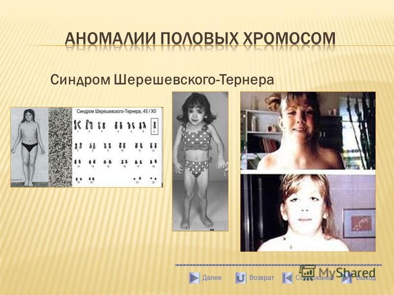 Синдром Шерешевского-Тернера Выход Содержание Далее Возврат