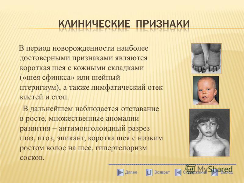 В период новорожденности наиболее достоверными признаками являются короткая шея с кожными складками («шея сфинкса» или шейный птеригиум), а также лимфатический отек кистей и стоп. В дальнейшем наблюдается отставание в росте, множественные аномалии ра