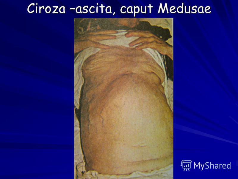 Ciroza –ascita, caput Medusae