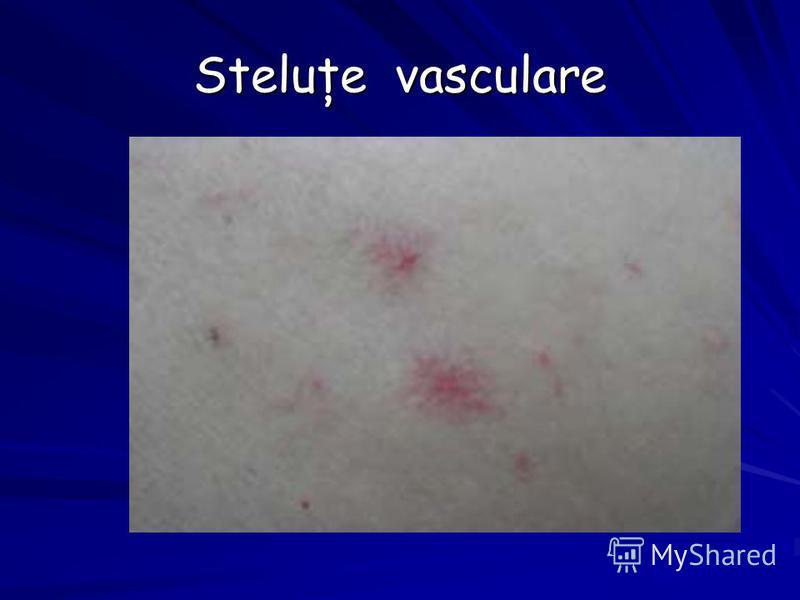 Steluţe vasculare