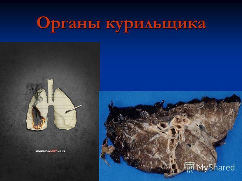 Органы курильщика