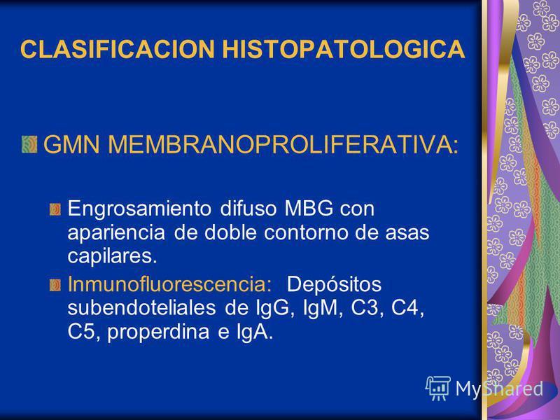 CLASIFICACION HISTOPATOLOGICA GMN MEMBRANOPROLIFERATIVA: Engrosamiento difuso MBG con apariencia de doble contorno de asas capilares. Inmunofluorescencia: Depósitos subendoteliales de IgG, IgM, C3, C4, C5, properdina e IgA.