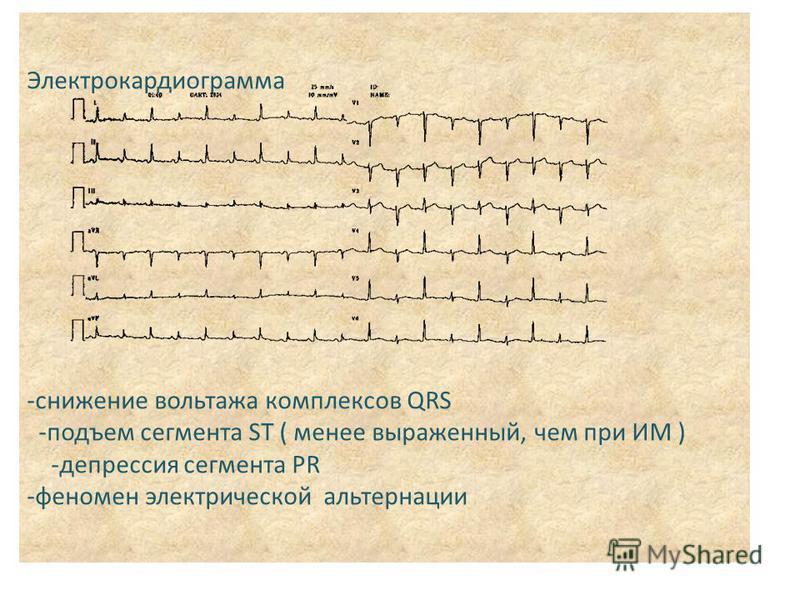 Электрокардиограмма -снижение вольтажа комплексов QRS -подъем сегмента ST ( менее выраженный, чем при ИМ ) -депрессия сегмента PR -феномен электрической альтернации