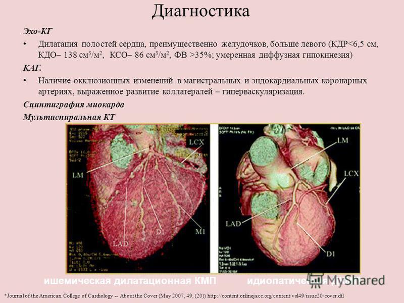 Диагностика Эхо-КГ Дилатация полостей сердца, преимущественно желудочков, больше левого (КДР 35%; умеренная диффузная гипокинезия) КАГ. Наличие окклюзионных изменений в магистральных и эндокардиальных коронарных артериях, выраженное развитие коллатер