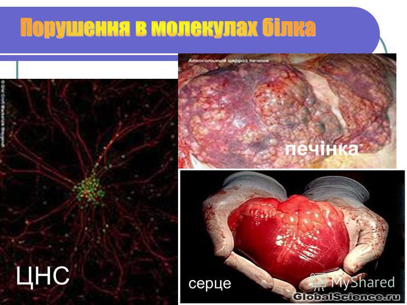ЦНС печінка серце