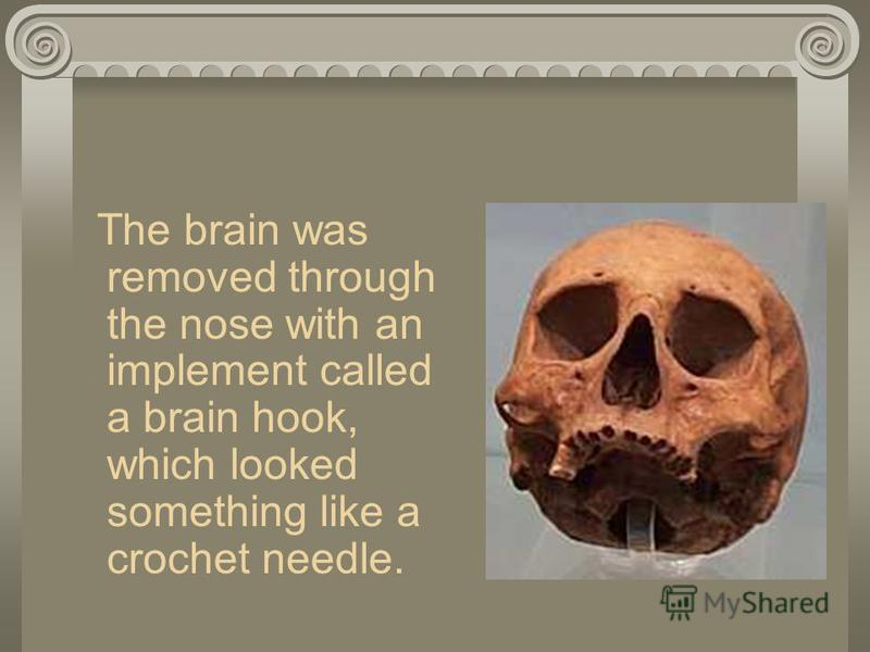 The brain was removed through the nose with an implement called a brain hook, which looked something like a crochet needle.