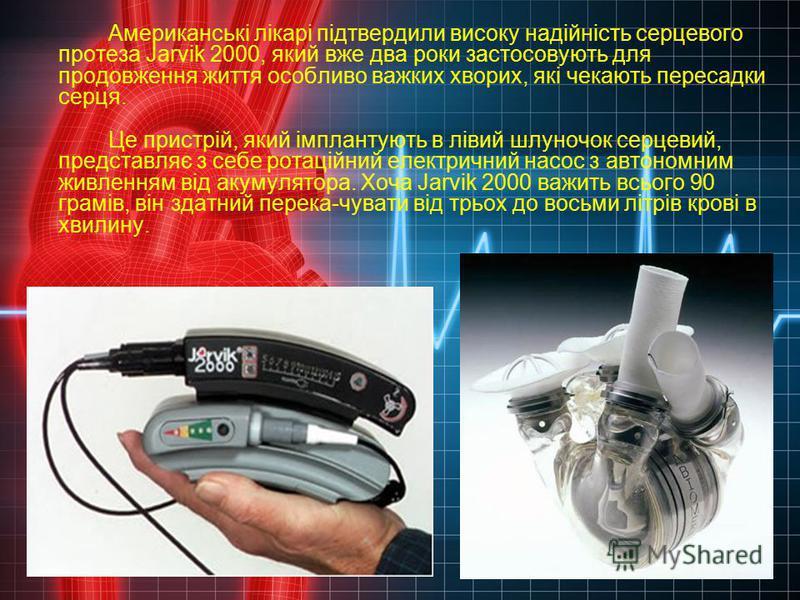 Американські лікарі підтвердили високу надійність серцевого протеза Jarvik 2000, який вже два роки застосовують для продовження життя особливо важких хворих, які чекають пересадки серця. Це пристрій, який імплантують в лівий шлуночок серцевий, предст