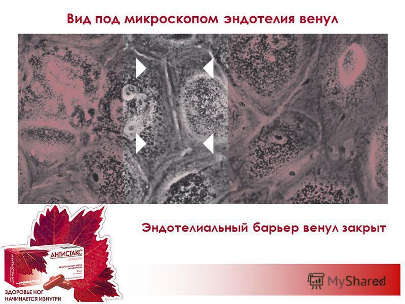 29 Вид под микроскопом эндотелия венул Эндотелиальный барьер венул закрыт