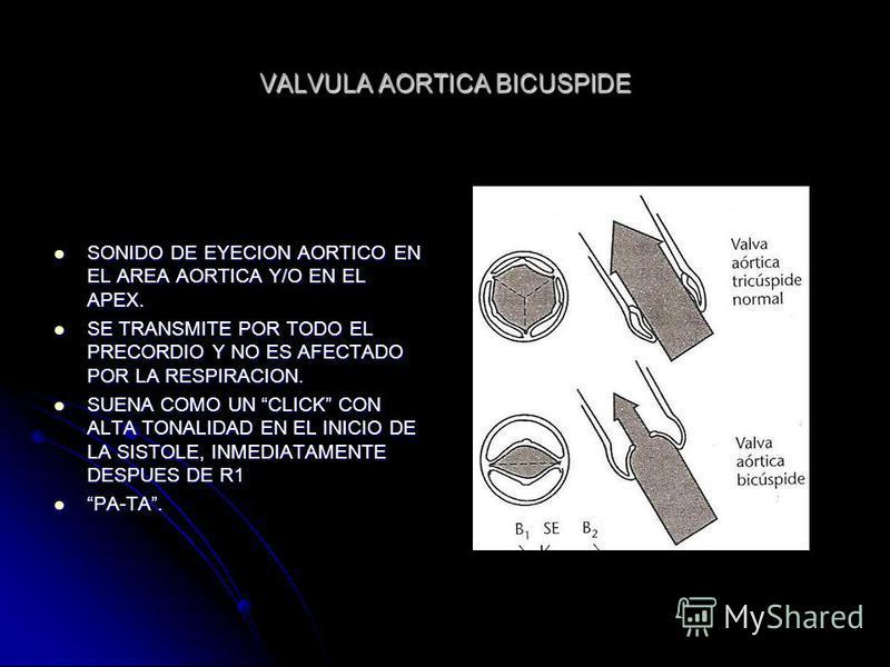 VALVULA AORTICA BICUSPIDE SONIDO DE EYECION AORTICO EN EL AREA AORTICA Y/O EN EL APEX. SONIDO DE EYECION AORTICO EN EL AREA AORTICA Y/O EN EL APEX. SE TRANSMITE POR TODO EL PRECORDIO Y NO ES AFECTADO POR LA RESPIRACION. SE TRANSMITE POR TODO EL PRECO