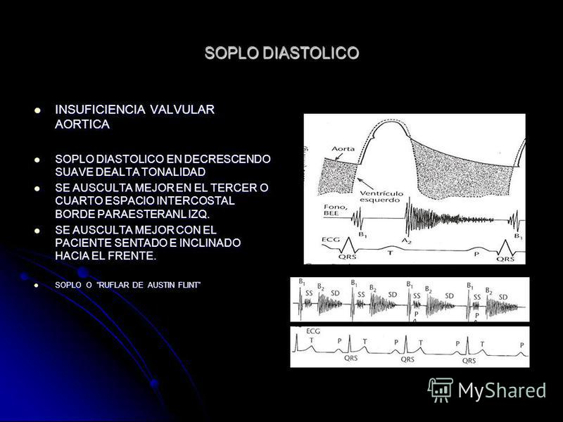 Evaluacion cardiovascular dr edgar for Cuarto espacio intercostal