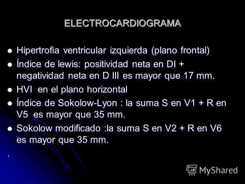 ELECTROCARDIOGRAMA Hipertrofia ventricular izquierda (plano frontal) Hipertrofia ventricular izquierda (plano frontal) Índice de lewis: positividad neta en DI + negatividad neta en D III es mayor que 17 mm. Índice de lewis: positividad neta en DI + n