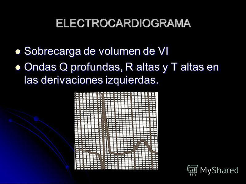ELECTROCARDIOGRAMA Sobrecarga de volumen de VI Sobrecarga de volumen de VI Ondas Q profundas, R altas y T altas en las derivaciones izquierdas. Ondas Q profundas, R altas y T altas en las derivaciones izquierdas.
